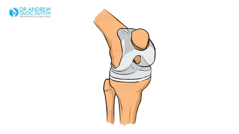 Dr Andrew Dutton Knee Replacement Process Illustration