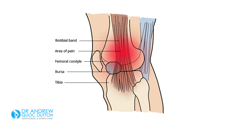 Dr-Andrew-Dutton-Iliotibial-Band-Syndrome