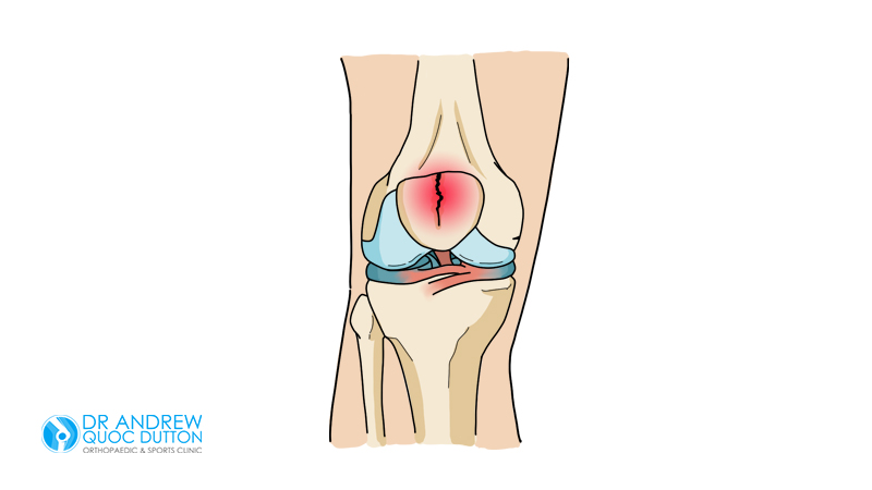 Dr-AndrewDutton-Patellar-Fracture