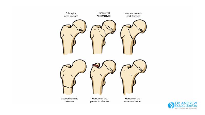 Hip Fractures Illustration - Dr Andrew Dutton