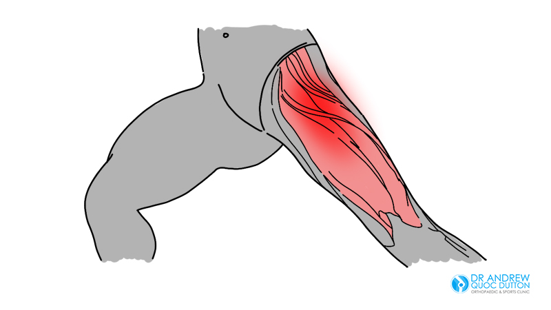 Hip Strain Illustration Dr Andrew Dutton