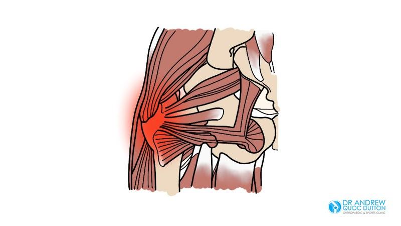 Hip Tendonitis Illustration Dr Andrew Dutton