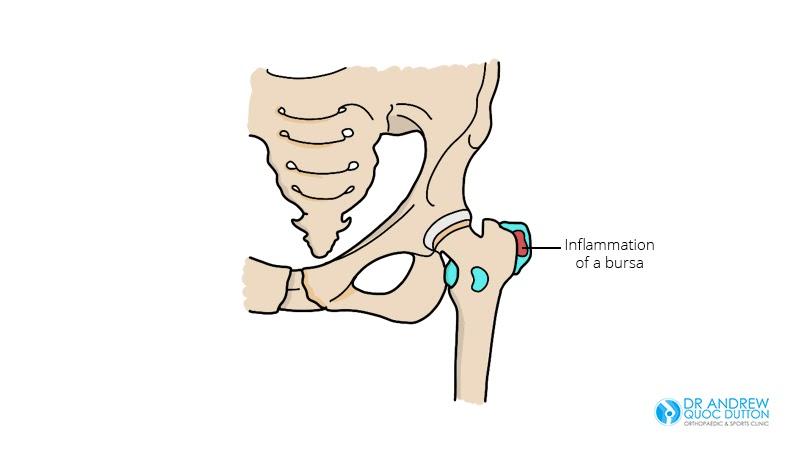 Trochanteric Bursitis Illustration Dr Andrew Dutton