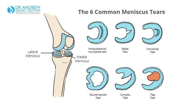 Dr Dutton Illustration Types of Meniscus Tears