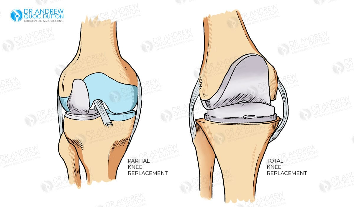 Dr Andrew Dutton Knee Replacement Illustration