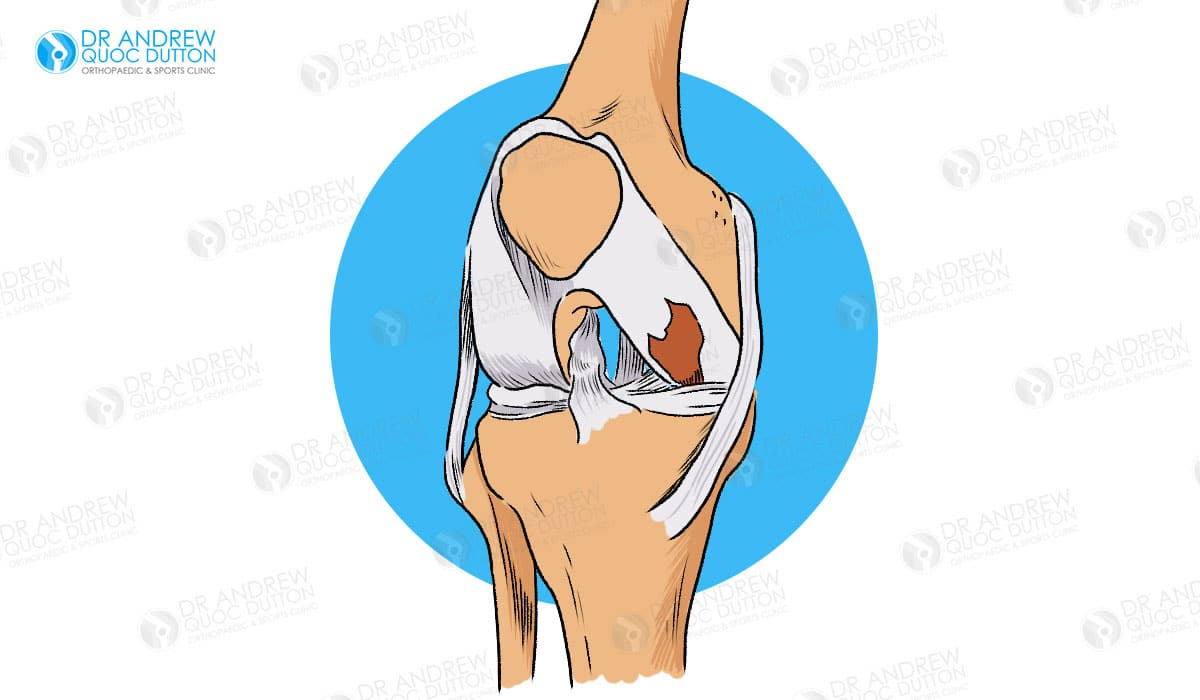 Dr Andrew Dutton Cartilage Injury Illustration