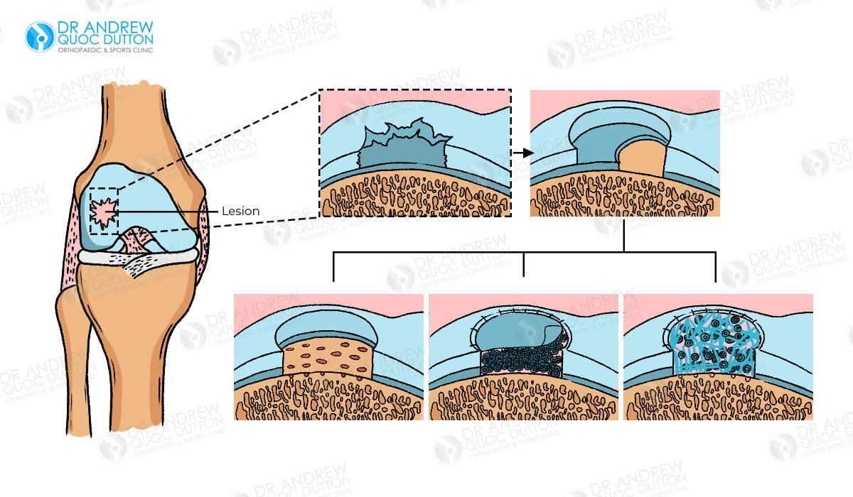 Dr Andrew Dutton Cartilage Regeneration Illustration
