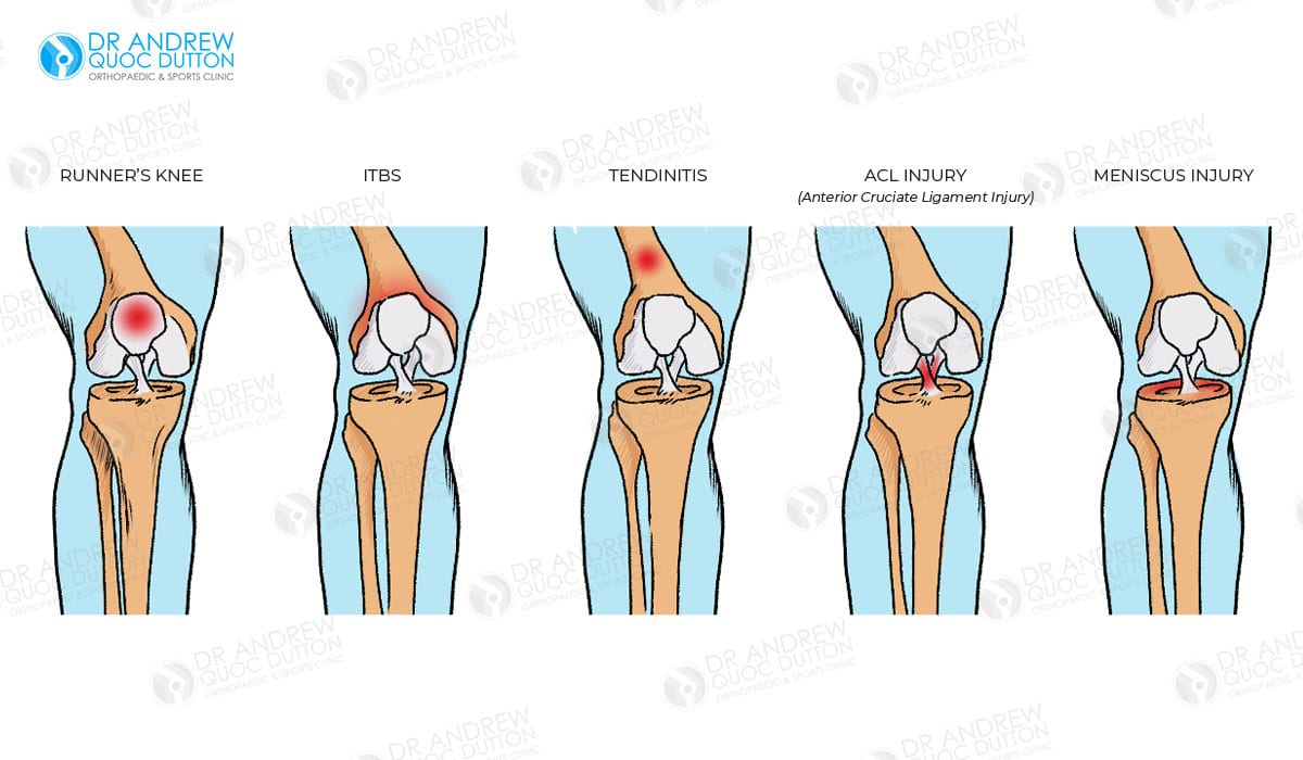 Dr Andrew Dutton Knee Acl And Meniscal Injuries Illustration