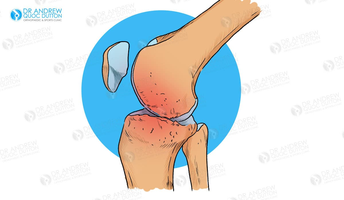 Dr Andrew Dutton Knee Osteoarthritis Illustration