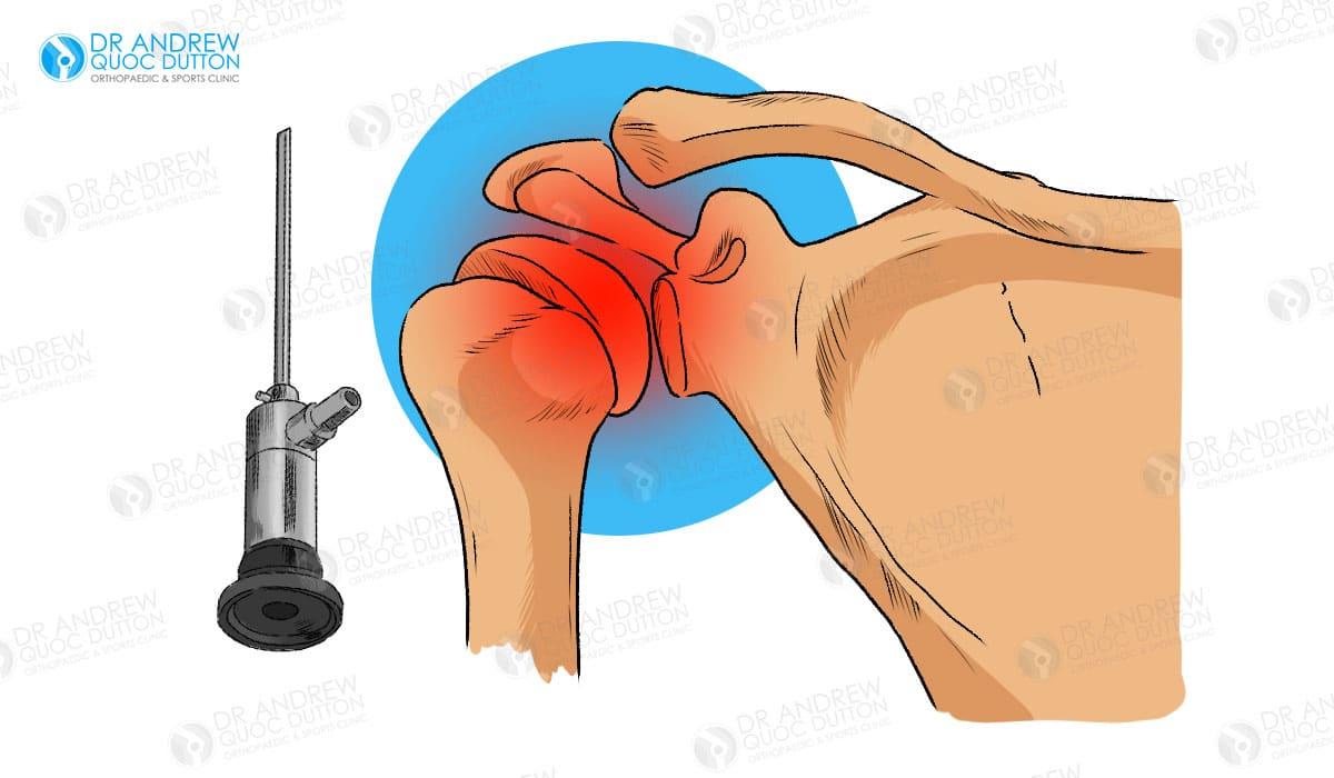 Dr Andrew Dutton Shoulder Arthroscopy Illustration