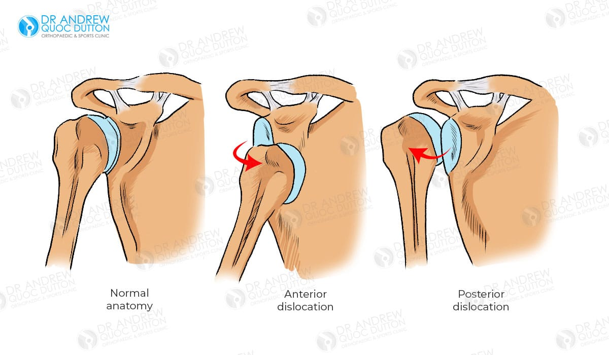 Dr Andrew Dutton Shoulder Arthroscopy Surgery Illustration