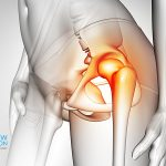 Hip Pain Illustration Dr Andrew Dutton