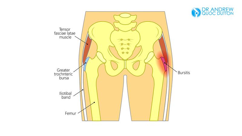 Dr Dutton Hip Bone Pain Bursitis Of The Hips