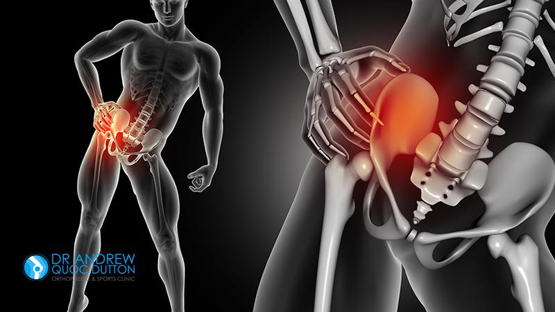 Dr Dutton Hip Bone Pain Illusration