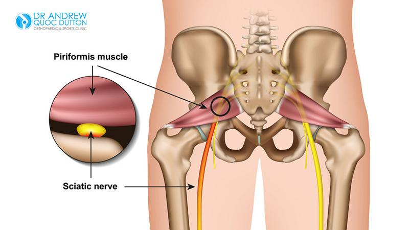 Dr Dutton Hip Bone Pain Piriformis Syndrome