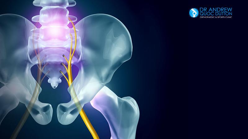 Dr Dutton Hip Bone Pain Sciatica