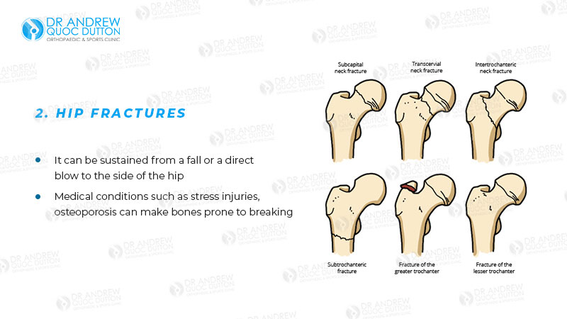 Dr Andrew Dutton Hip Fractures Illustration