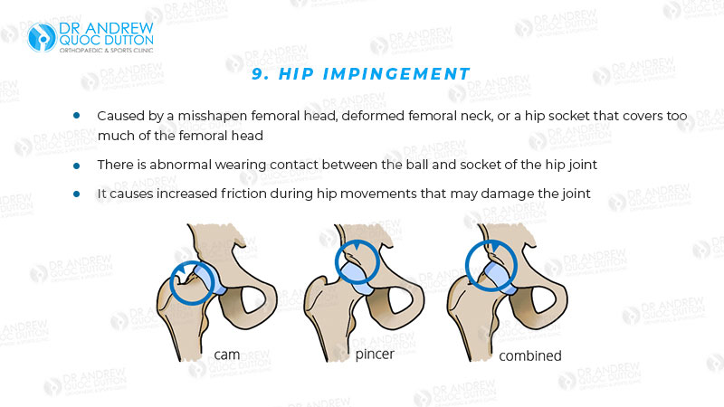 Dr Andrew Dutton Hip Impingement Illustration