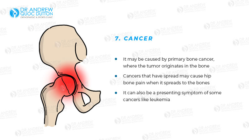 Dr Andrew Dutton Hip Primary Bone Cancer Illustration