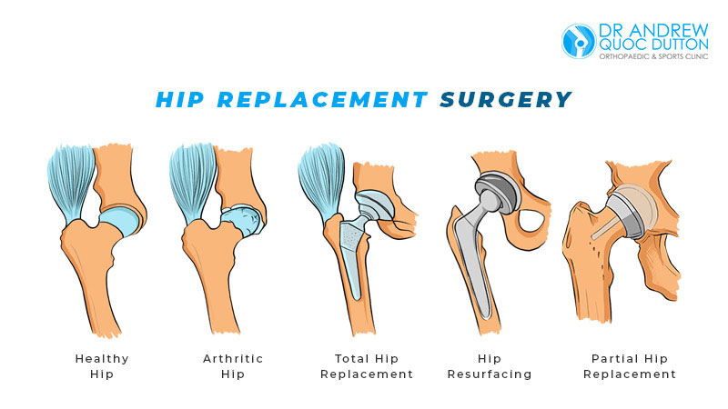 Dr Andrew Dutton Blog Orthopaedic Specialties Hip Replacement Surgery