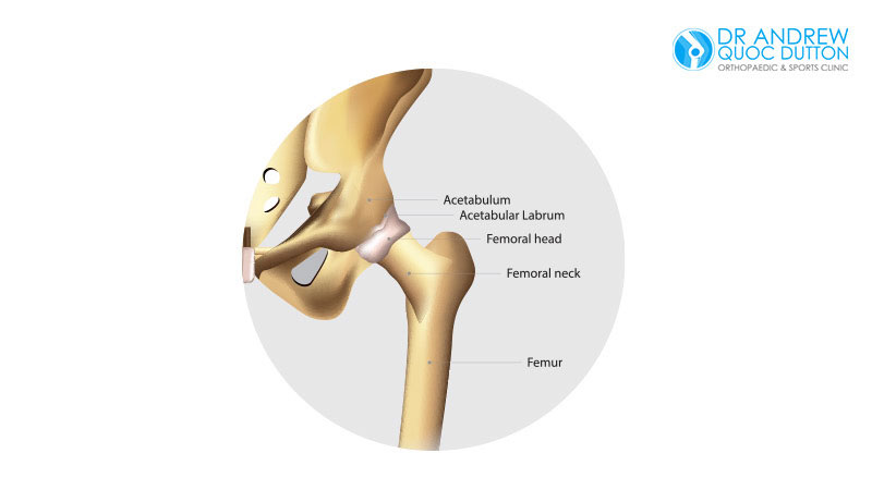 Dr Andrew Dutton Blog Orthopaedic Specialties Hip