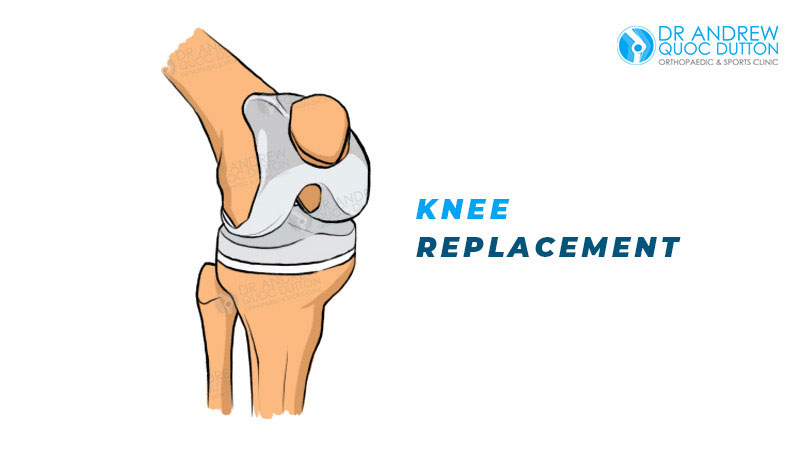 Dr Andrew Dutton Blog Orthopaedic Specialties Knee Replacement Singapore
