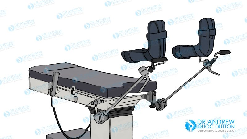 dr andrew quoc dutton hip arthroscopy surgical bed illustration