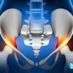 Dr Andrew Dutton - Hip Inflammation Illustration