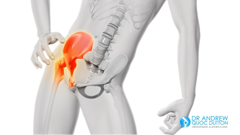 Dr Andrew Dutton - 7 Signs That You Might Need Hip Replacement Surgery - Illustration