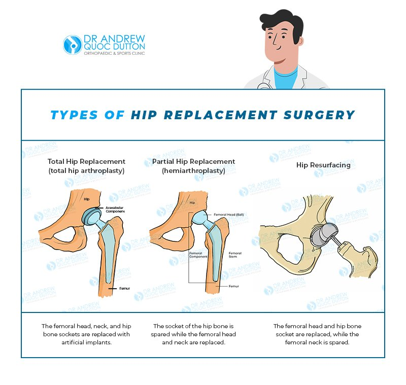 Dr Andrew Dutton - Types of Hip Replacement Surgery - Illustration